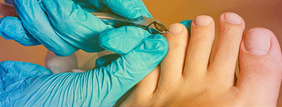 антибиотики при грибке ногтя